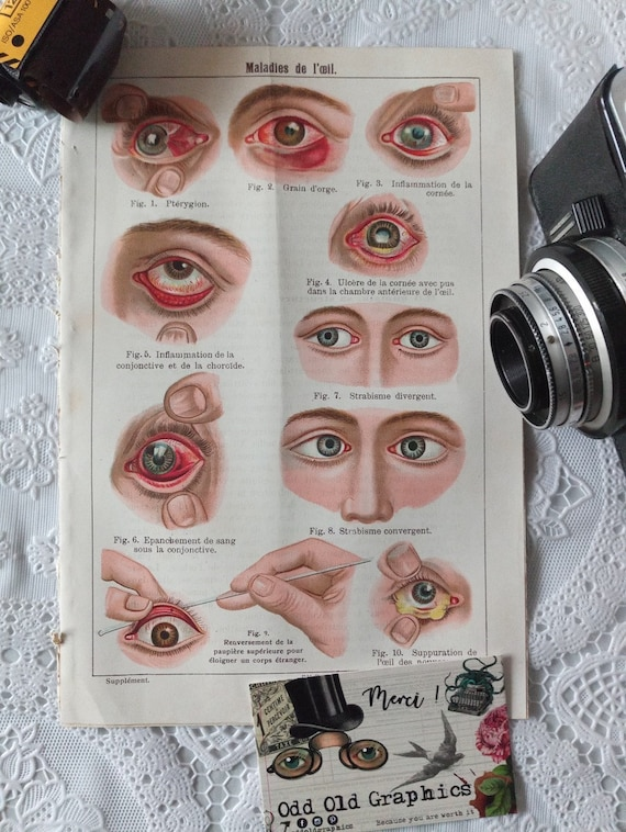 1900 French vintage curio cabinet poster authentic bizarre eye disease funny medical vintage illustration old bizarre poster