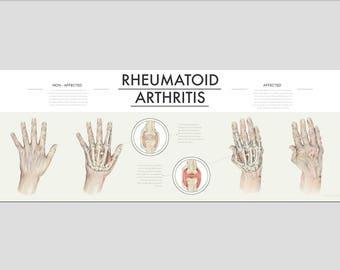 Rheumatoid Arthritis Information Poster