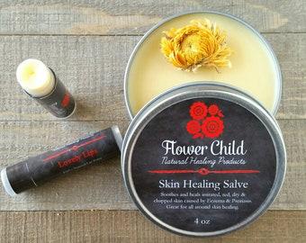 Skin Healing Pack- 4 oz Skin Healing Salve & 2 Lovely Lips Lip Balm -Long Lasting skin healing aide for both skin and Lips!