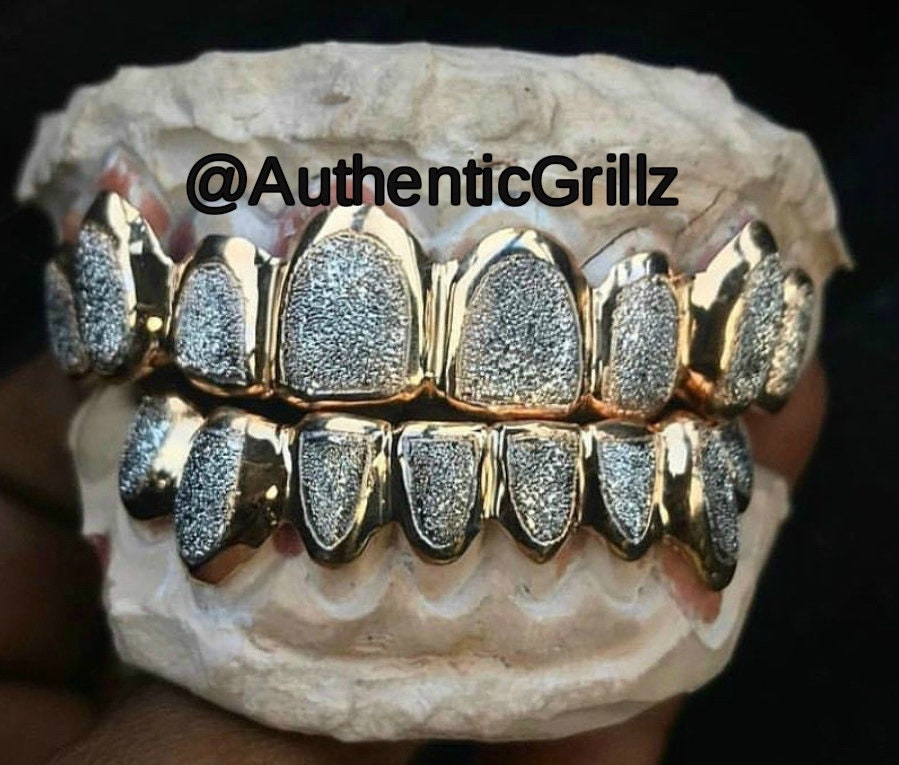 Authentic Custom Grill with Diamond Dust Grillz Two Tone Grillz TOP OR  BOTTOM