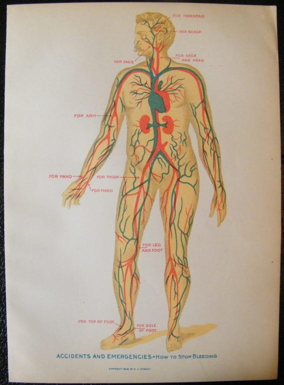 Vintage Medical Illustration Chart How To Stop Bleeding From Etsy