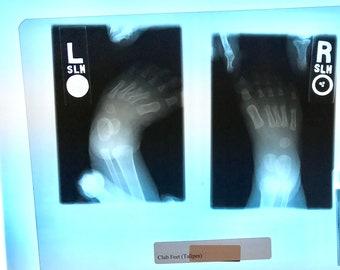 X-ray Anomaly