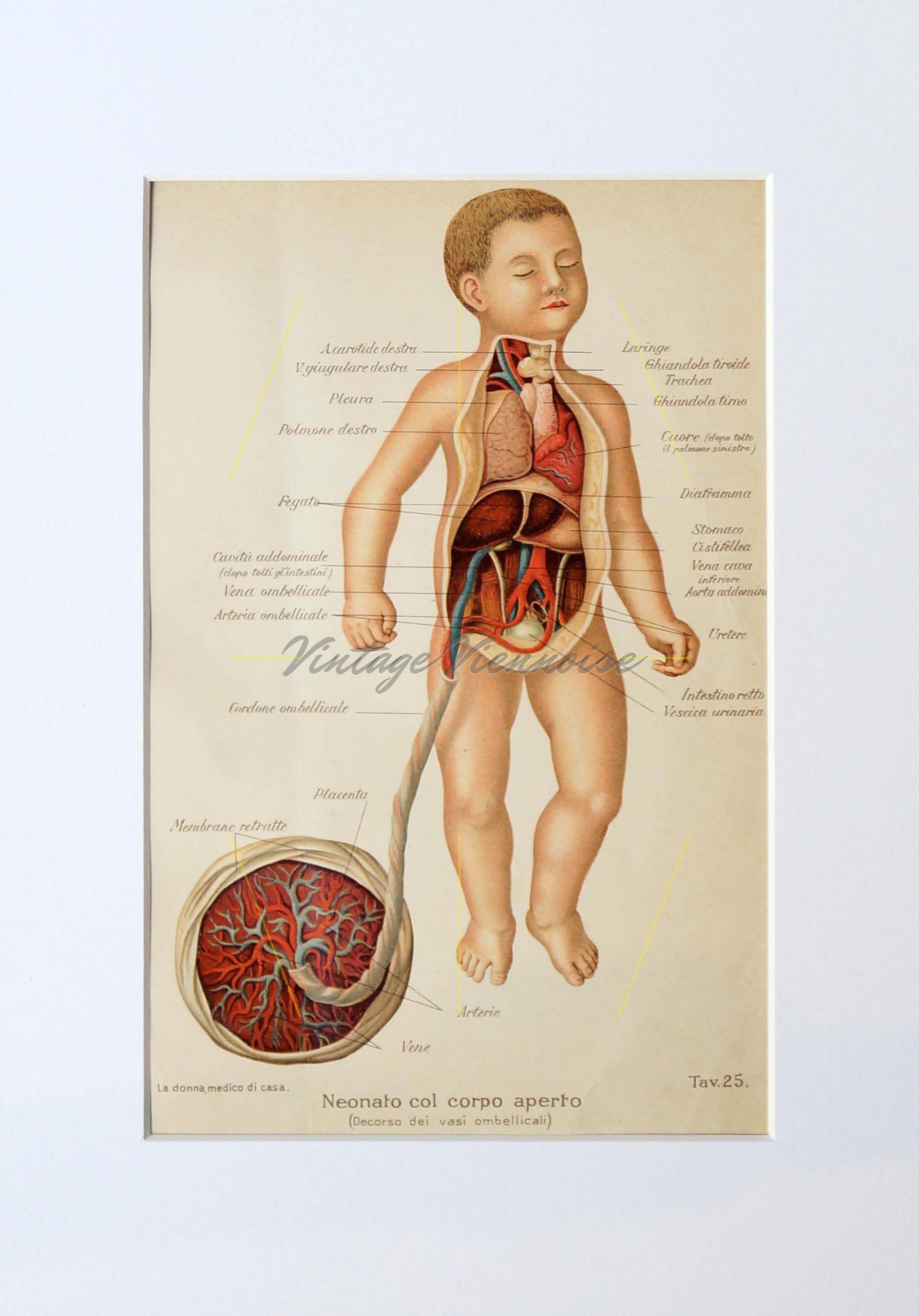 Baby Anatomy Print Antique Childbirth Foetus Dissection Etsy