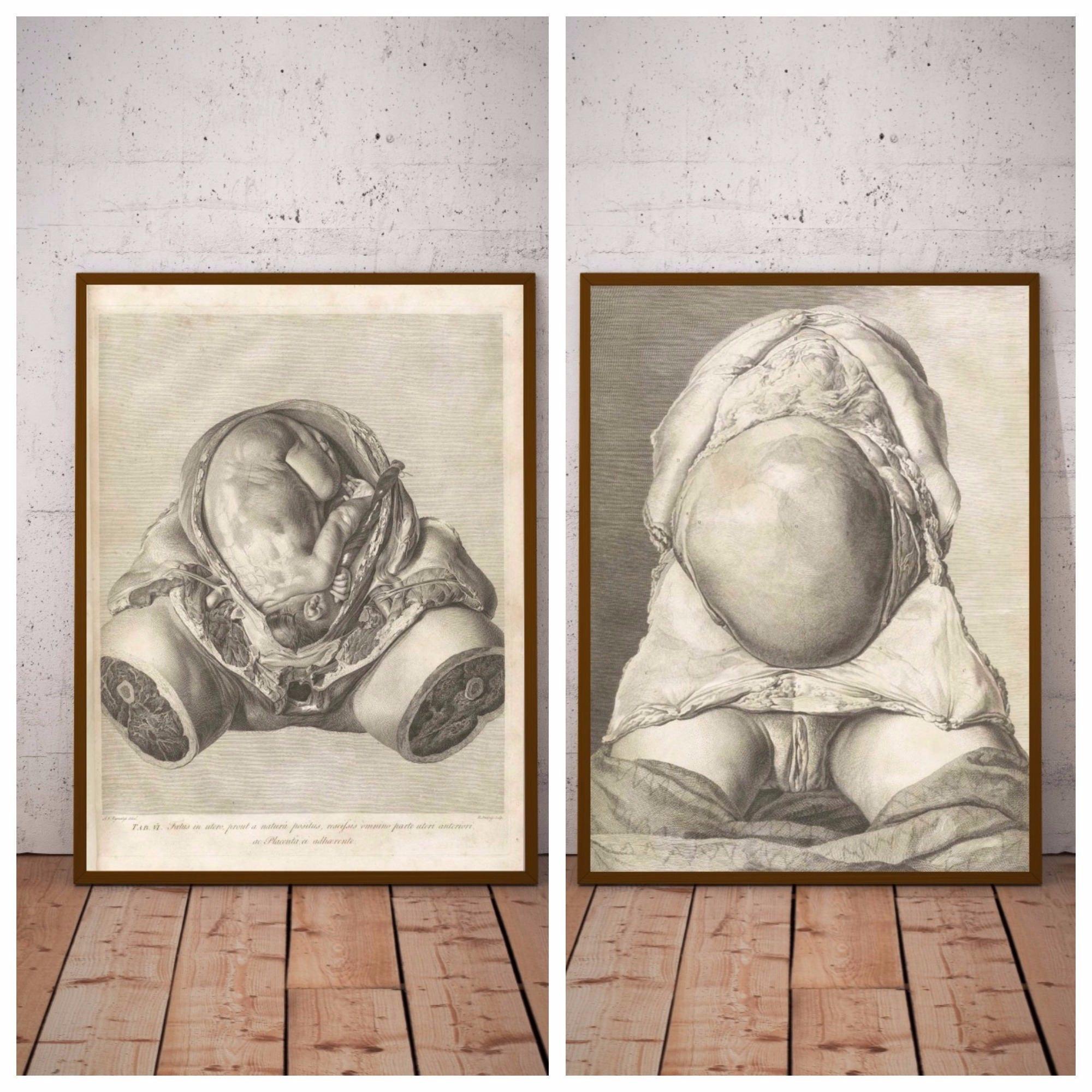 Zwei Gebärmutter Vintage-Prints Schwangerschaft Anatomie | Etsy