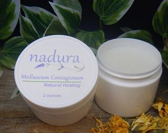 Healing - Molluscum Contagiosum Salve, Water Warts, Water Warts Cream, Water Warts Relief, Water Warts Salve, Water Warts Treatment