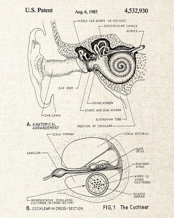 Cochlear Implant Patent, Inner Ear Diagram, Ear Anatomy Poster, Audiologist on ear auricle, auditory system, ear wax, ear outline, ear canal, ear tubes, organ of corti, ear model, ear bones, middle ear, ear structure, ear drawing, ear anatomy, ear hammer, ear hair cells, inner ear, ear tinnitus, outer ear, semicircular canal, human nose, ear function, eustachian tube, ear exam, ear drum, ear and sound waves, ear parts, human eye, ear gauge,