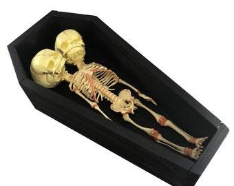 Fetus coffin