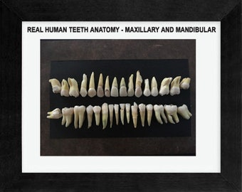 One  Complete Set(32) OF Real Human Teeth-Framed