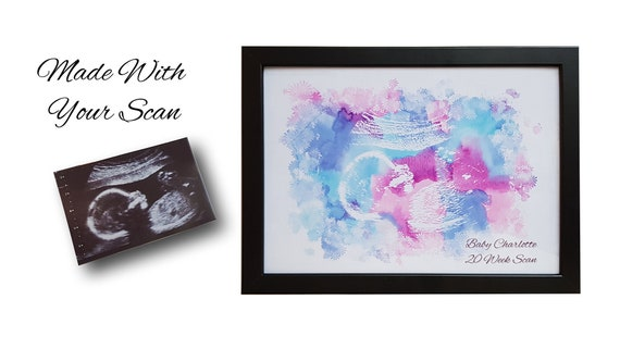 MUMMY TO BE GIFT Personalised Scan Photo Gift ***YOUR SCAN PHOTO PRINTED***