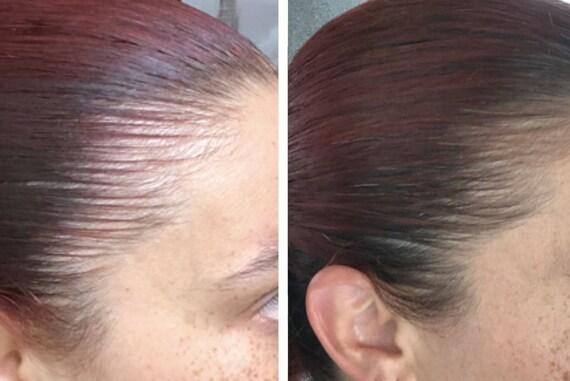 Miracle Hair Growth Oil Hair Health Oil Stop Hair Loss Etsy