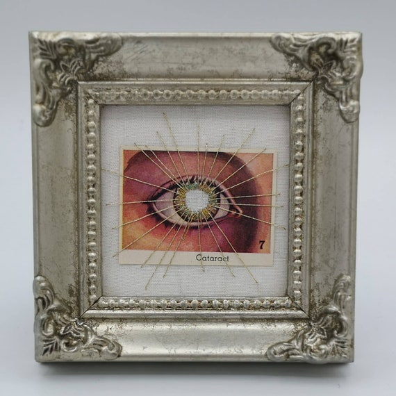 Wunderkammer Nº 9: Diseases of the Eye, Cataract