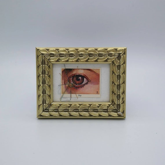 Wunderkammer Nº 10: Diseases of the Eye, Sty