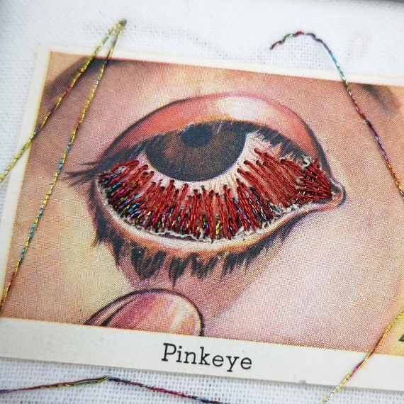 Wunderkammer Nº 10: Diseases of the Eye, Pinkeye