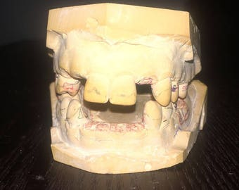 Creepy Vintage Dental Teeth Cast - Articulated - Made from Microstone - Halloween Vintage Dental Prop