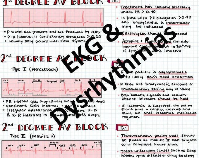 Basic EKG Interpretation & Dysrhythmias