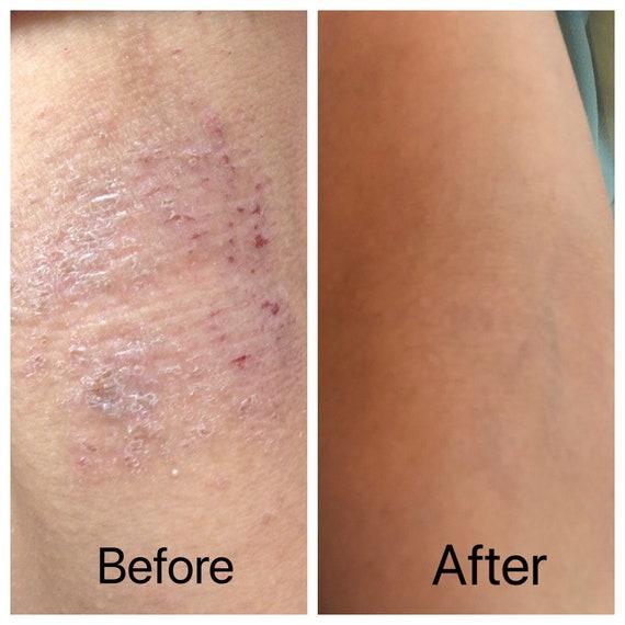 Mitlow Herbal Eczema Balm ! Natural Eczema Relief Cream for Chronic Eczema Dermatitis Itching Rash & Moisturizer for Dry Skin~ Stops Itching