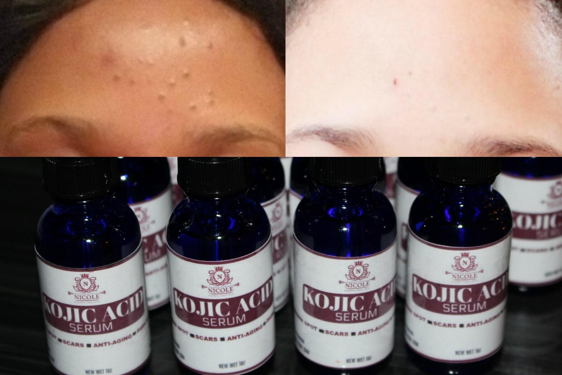 Kojic Acid Serum, dark spots, brown spots ...