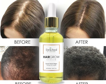 Hair Growth Serum Best Selling Hair Growth Product Natural