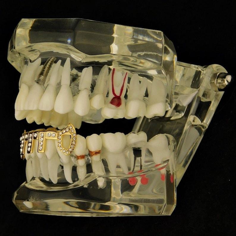 Custom 14k Gold Plated Hip Hop Fangs Iced Out Vertical Bars Vampire Bottom Teeth Grillz