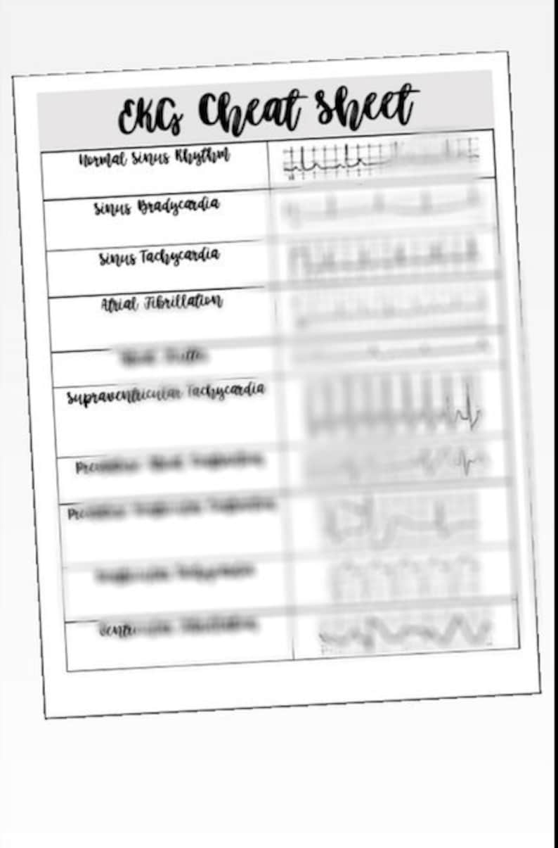 picture relating to Printable Ekg Strips named Fresh new EKG Cheat Sheet - NCLEX prep Med Surg