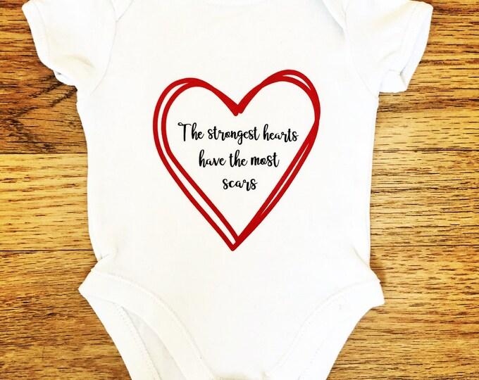 CHD/Heart Surgery/ Heart Awareness Baby Vest