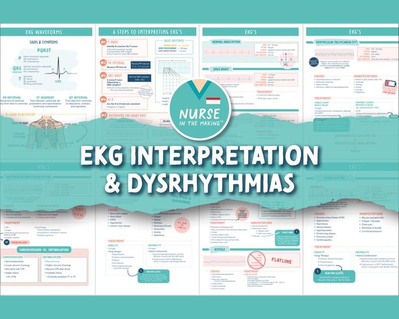 EKG Bundle  8 pages   Interpretation & Common Dysrhythmias image 1