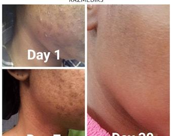 Minimalist Acne Skin Clarifying Serum