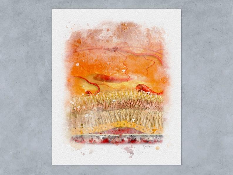 Macular Degeneration Watercolor Style Art Print for Eye Doctor Office Decor 208 Retina Doctor Gift