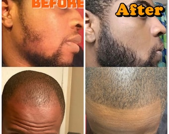 Advanced Growth Men's Beard and Hair kit. Fill in patches, prevent ingrown hair and Anti itch. (Oil With derma roller)