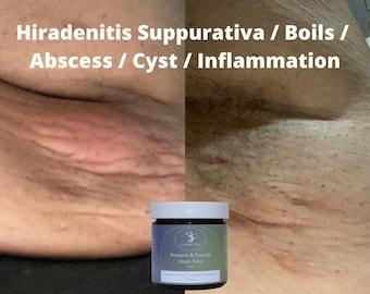 Beeswax & Propolis Magic Salve   100 Problems Healing Salve   Hidradenitis Suppurativa / Boils/ Inflammation/ Pain / Swelling  