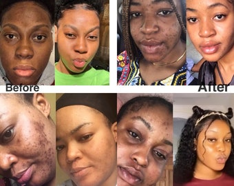 Dark spots remover(custom made face serum), acne, dark spots, acne marks, aged spots, discolorations, hyperpigmentation, blemishes etc