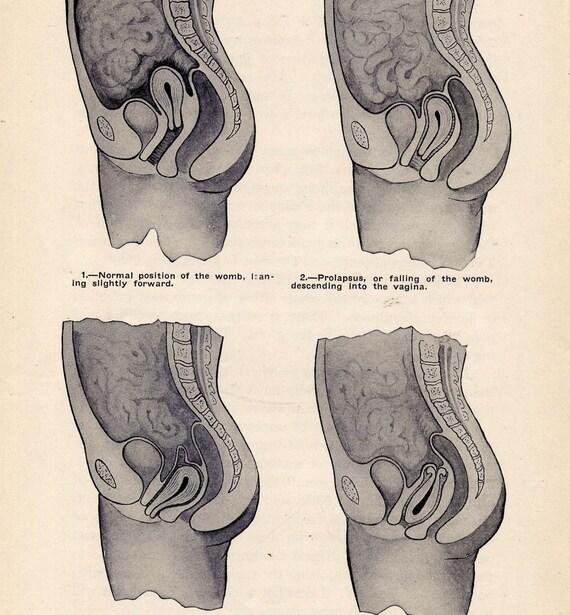 Weibliche Anatomie Gebärmutter Hubraum Diagramm 1906 Edwardian | Etsy