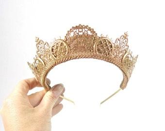 Rose Gold Crowns