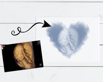 Baby Ultrasound Art, Watercolor Sonogram Print, Baby Shower Gift, Gender Reveal, Sonography Art, Pregnancy Gift, Ultrasound Art for Wall
