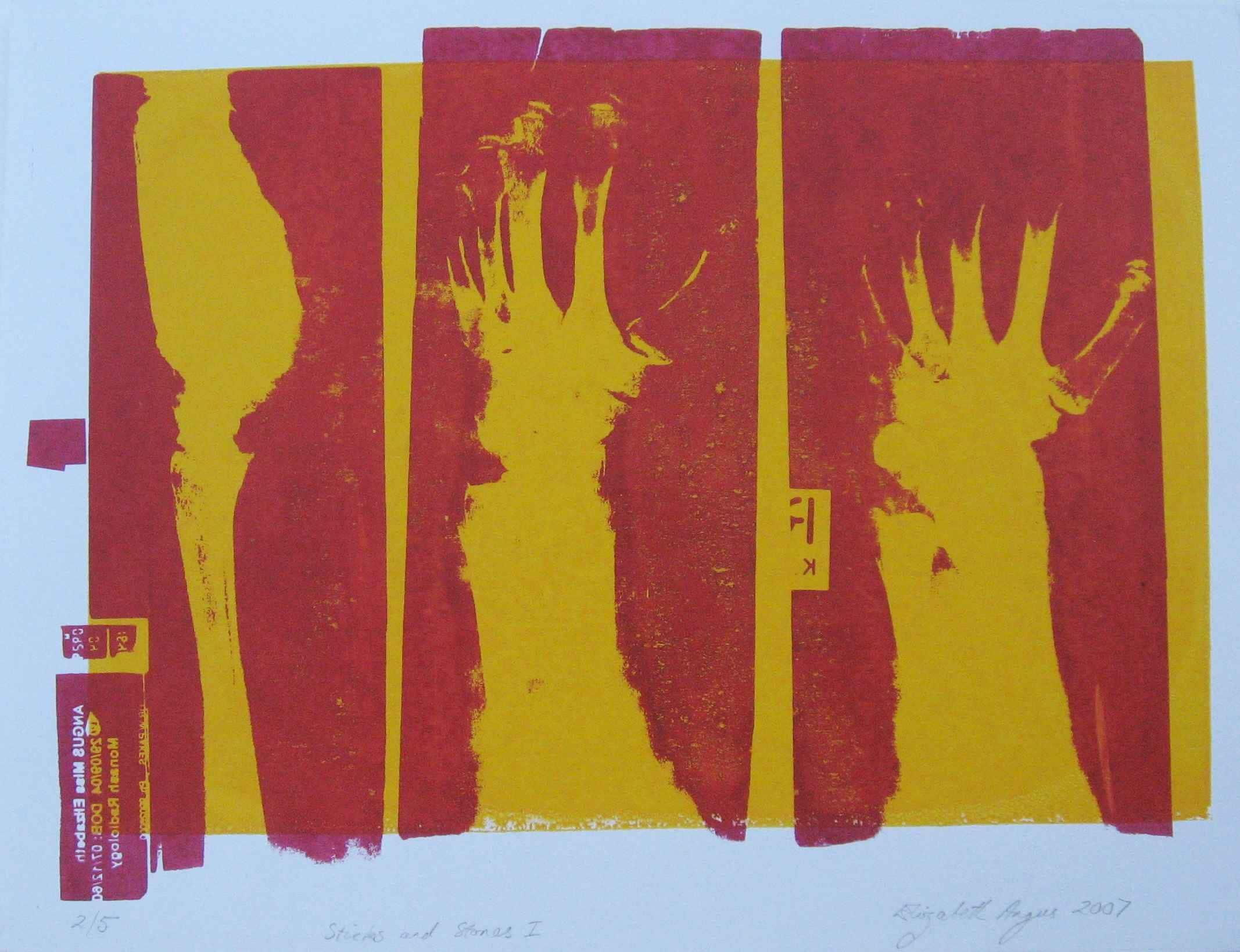 X ray wall art x ray art bones screen print bones print | Etsy
