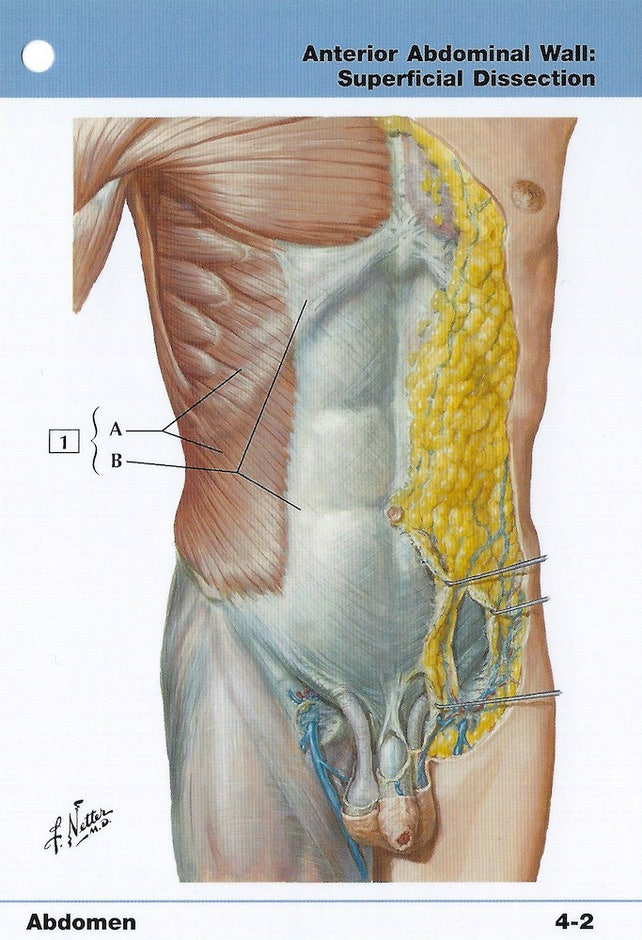 Anterior Abdominal Wall Superficial Dissection Anatomy Flash Etsy