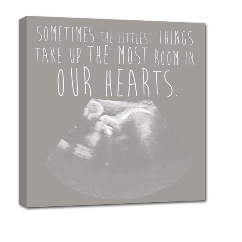 Holiday Gift Your Ultrasound Sonogram image as Canvas Art  image 0
