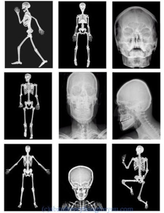 """human body x rays photo collage sheet digital download 2.5"""" x 3.5"""" graphics downloadable images medical skeleton skull anatomy printables"""