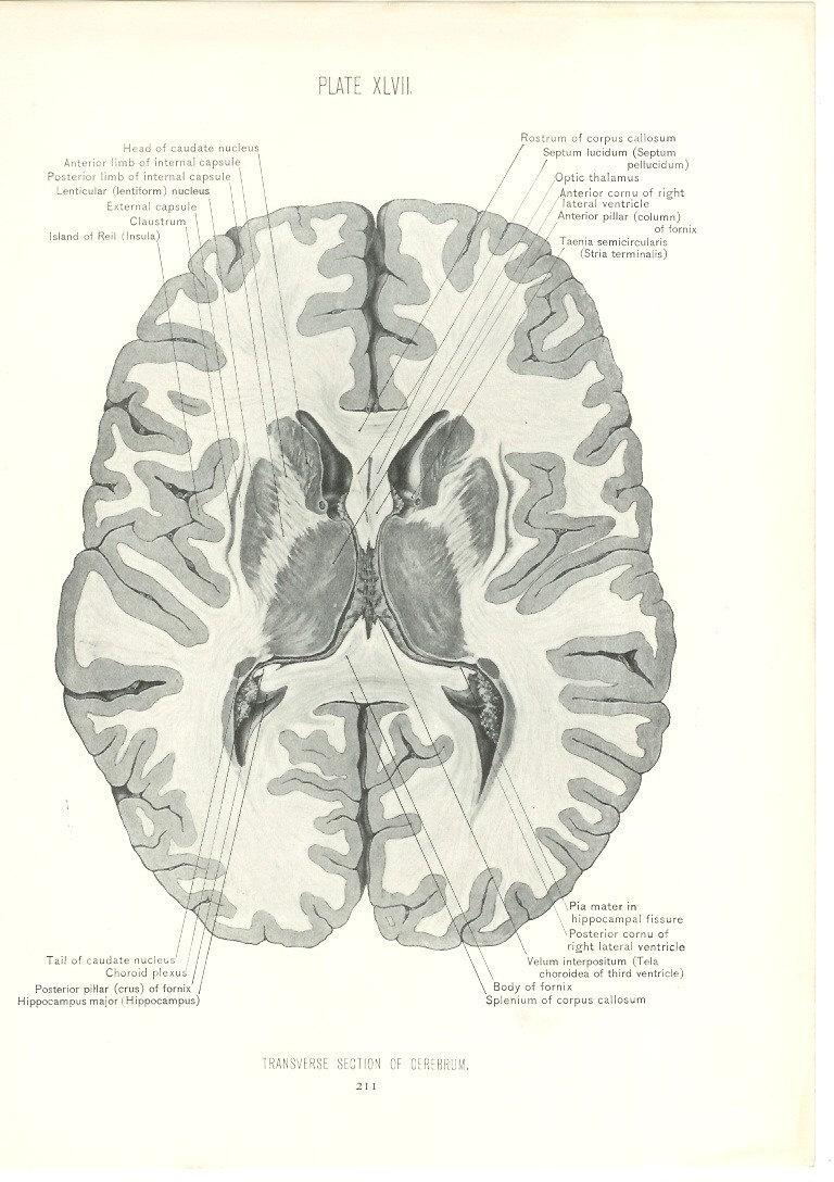 1926 Human Anatomy Print Transverse Section of Brain | Etsy