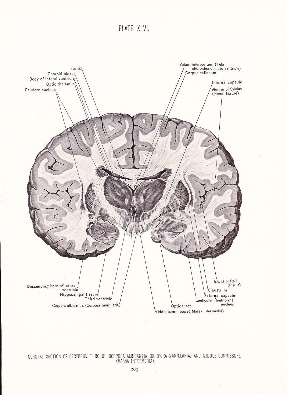 1926 Human Anatomy Print Coronal Section Cerebrum Brain Etsy