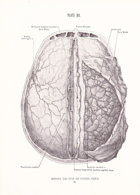 1926 Human Anatomy Print Arachnoid Dura Mater Meninceal   Etsy