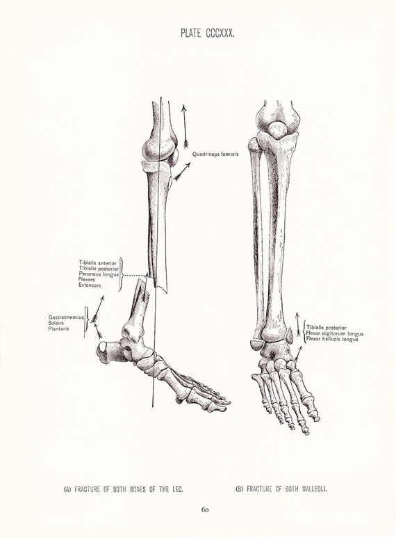 Broken Leg Medical Diagram Block And Schematic Diagrams