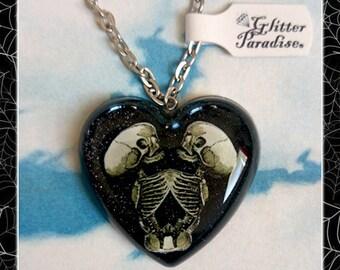 Siamese Skeleton Heart - Brooch - Skulls - Baby Skeleton Twins - Black Heart - Cute & Dead - Freaks - Bones - Gothic - Glitter Paradise®