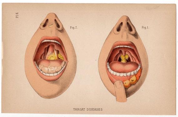 Anatomie Gorge 1890 gorge maladie anatomie antique anatomie imprimer | etsy
