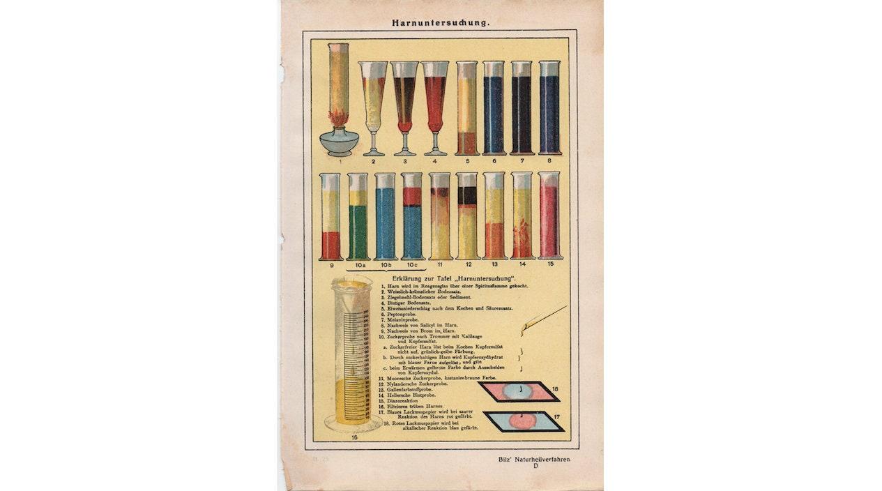 c. 1926 URINANALYSE PRINT original antiken medizinischen   Etsy