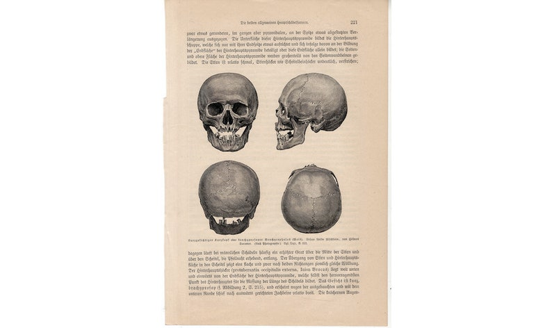 c. 1894 ANTIQUE SKULL PRINT  original antique anatomy print  image 0
