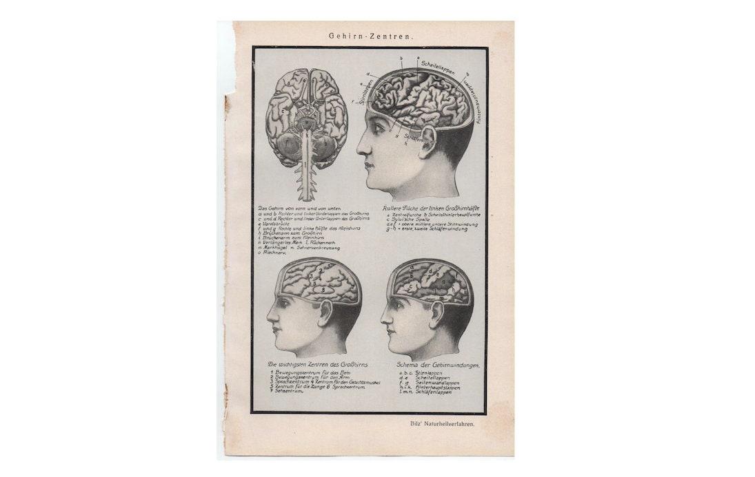 c. 1926 Gehirn Anatomie PRINT original antiken medizinischen | Etsy
