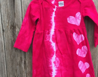 Baby Girls Dress, Pink Baby Dress, Toddler Girls Dress, Pink Heart Dress, Tie Dye Baby Dress, Baby Valentine's Day Dress (18 months)