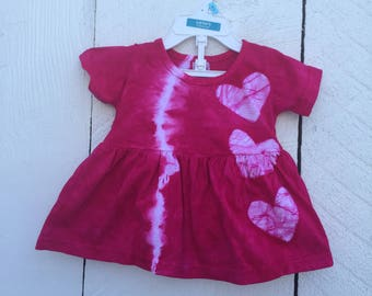 Pink Baby Dress, Tie Dye Baby Dress, Pink Baby Gift, Baby Shower Gift, Pink Baby Outfit, Baby Girls Dress, Baby Girl Gift (6 months)