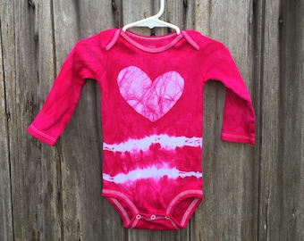 Tie Dye Baby Bodysuit, Pink Baby Gift, Baby Shower Gift, Baby Girl Gift, Pink Baby Bodysuit, Valentine's Day Baby Bodysuit (12 months)